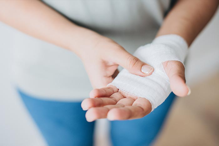 Woman holding injured hand